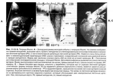 Анализ на врожденные пороки кровь